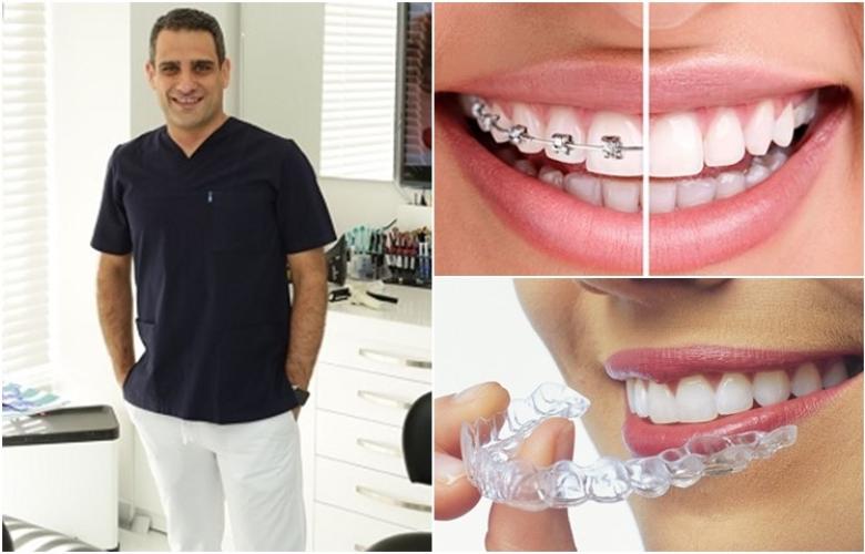 """Dr. İlker Arslan: """"Diş tellerine elveda"""" Yeni teknoloji ile diş teli kullanmadan düzgün dişlere kavuşmak mümkün!"""